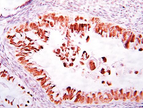 Эндометриальная интраэпителиальная карцинома — ранняя форма серозной папиллярной карциномы эндометрия
