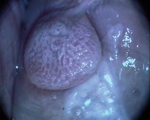 Особливості кольпоскопічної діагностики передраку та початкових форм раку шийки матки