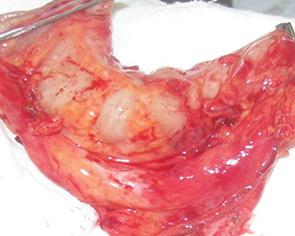 Реконструктивно восстановительные операции в хирургии местно распространенных злокачественных опухолей головы и шеи