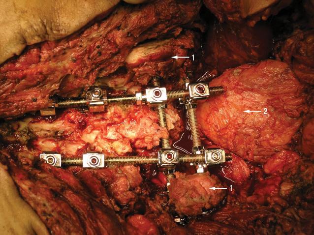 Тотальное удаление крестца приопухолевом поражении