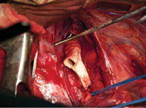 Перспективные направления в онкохирургии