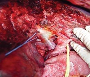 Современный подход к хирургическому лечению гепатоцеллюлярной карциномы с опухолевой инвазией воротной вены