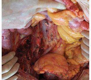 Современные технологии в онкохирургии сарком забрюшинного пространства