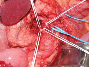 Радикальное хирургическое лечение злокачественных периампулярных новообразований