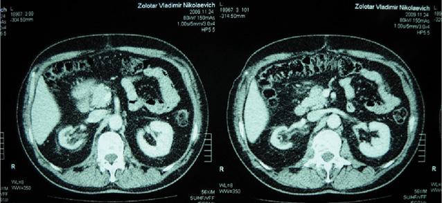 Вплив неоад'ювантної хіміотерапії на функцію нирок та уродинаміку у хворих з інвазивним раком сечового міхура