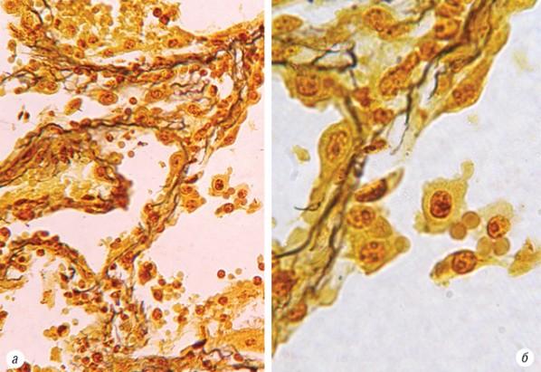 Сравнительные данные цитогенетических показателей альвеолярного эпителия и опухолевых клеток при плоскоклеточном раке легкого