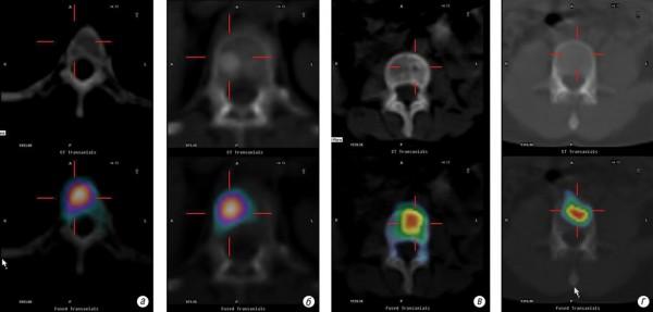 Диференційна діагностика доброякісного та злоякісного ураження хребта за допомогою додаткових режимів остеосцинтиграфії