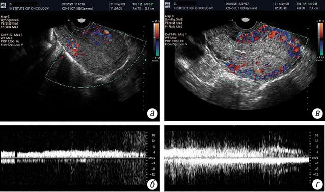 Клінічний досвід використання радіочастотної гіпертермії у лікуванні злоякісних трофобластичних пухлин