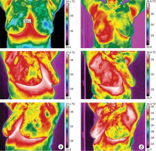 Оцінка результатів неоад'ювантного лікування хворих на місцево поширений рак грудної залози при використанні радіочастотної гіпертермії