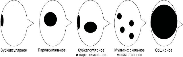 Биопсия «сторожевых» лимфатических узлов при меланоме кожи