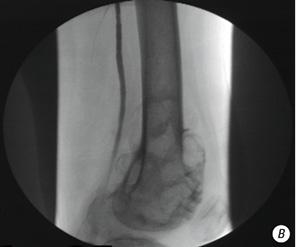 Неоадъювантная внутриартериальная химиотерапия больных саркомами костей конечностей и таза