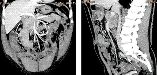 Рак поджелудочной железы: критерии резектабельности