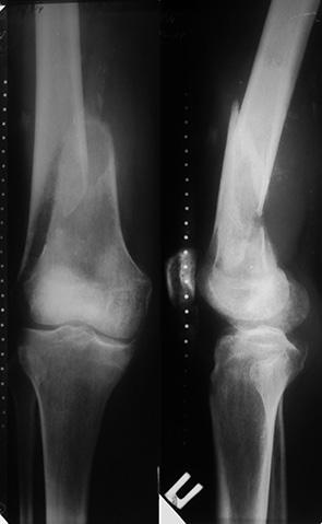 Дифференцированный подход к лечению больных с метастатическим поражением длинных костей конечностей