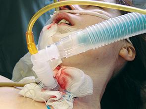 Шванноми голови та шиї. Клінічний випадок великої шванноми кореня язика