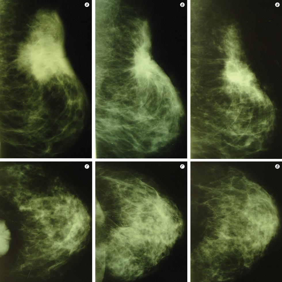 Застосування модифікаторів — шлях до підвищення ефективності лікування хворих на первинно неоперабельний рак грудної залози