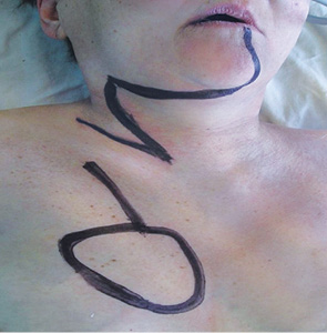 Великий грудний шкірно м'язовий клапоть у реконструктивній хірургії значних післяопераційних дефектів у хворих зі злоякісними пухлинами голови та шиї