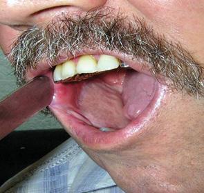 Використання підгіоїдного шкірно м'язового клаптя в хірургії раку порожнини рота