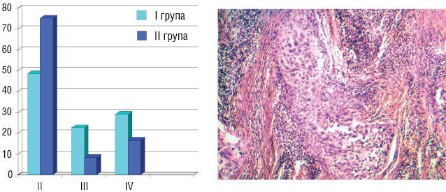 Хіміотерапія в лікуванні хворих на рак шийки матки ІІB стадії