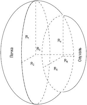 Циторедуктивная резекция почки в лечении метастатического почечно клеточного рака