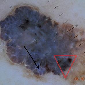 Дерматоскопия меланомы кожи, прикладное значение и перспективы
