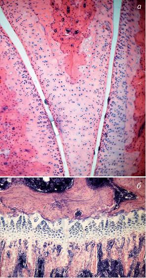 Експериментальна модель пухлинного ендопротезування колінного суглоба у дітей