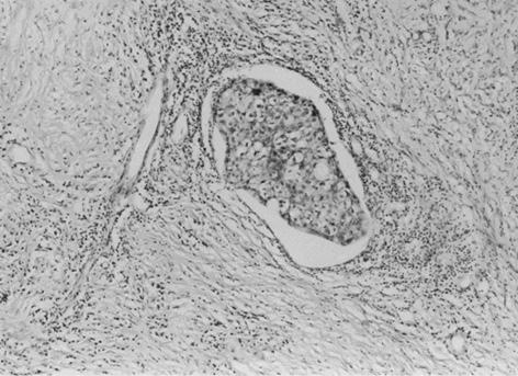Ефективність неоад'ювантної поліхіміотерапії у хворих на рак грудної залози. Лікувальний патоморфоз