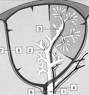 Особенности лучевой диагностики при легочных метастазах остеосаркомы у детей
