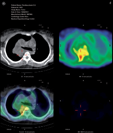Совмещенная технология ОФЭКТ/КТ в диагностике, стадировании и дифференциальной диагностике злокачественных и доброкачественных поражений легкого