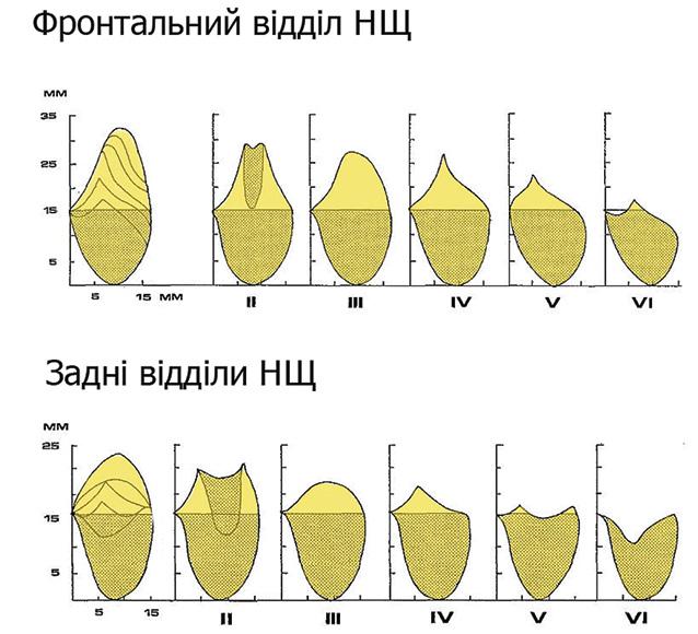 Крайова резекція нижньої щелепи: показання та протипоказання