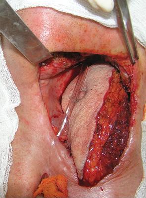 Розширена радикальна шийна дисекція вкомбінованому лікуванні регіонарних метастазів ухворих зізлоякісними пухлинами голови та шиї