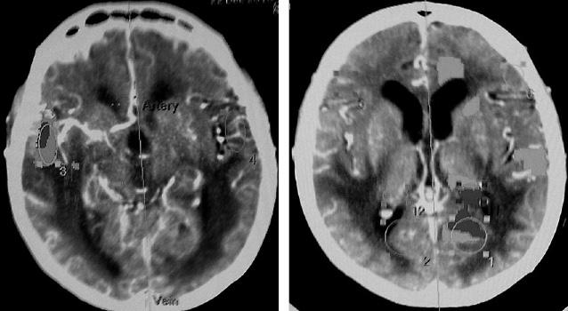 Стереотаксическая биопсия вдифференциальной диагностике лимфом головного мозга