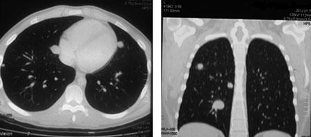 1 Лечение пациентов с метастазами остеосаркомы в легких