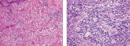 2 Лечение пациентов с метастазами остеосаркомы в легких