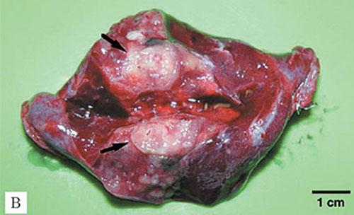 5 Лечение пациентов с метастазами остеосаркомы в легких
