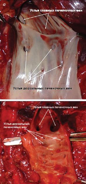 Хирургическое удаление опухолевых тромбов нижней полой вены без искусственного кровообращения: что делать, если piggyback мобилизация печени невозможна?