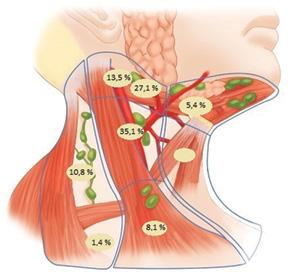 Шийна лімфодисекція з виявленням сторожового лімфатичного вузла у хворих на рак порожнини рота та ротоглотки