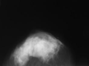 Випадок саркоми грудної клітки з клінічною маніфестацією пухлини грудної залози, що пальпується (випадок із практики)