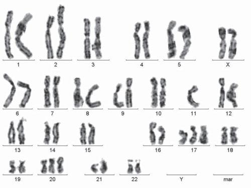 367 1 Аналіз цитогенетичних характеристик у хворих на платинорефрактерний рак яєчника