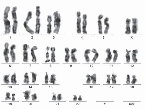 367 2 Аналіз цитогенетичних характеристик у хворих на платинорефрактерний рак яєчника