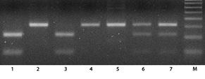 Значение полиморфизма SNP309 гена MDM2 для оценки течения хронического лимфолейкоза вкомплексе сдругими маркерами прогноза