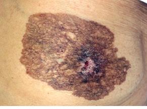 Рак Педжета грудной железы