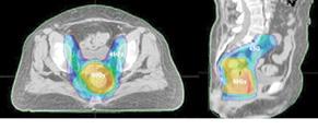 Роль 18 ФДГ ПЕТ/КТ уплануванні радіотерапії пухлин аноректальної локалізації: стан проблеми