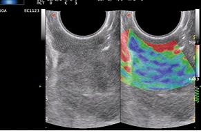 Комплексне променеве дослідження із використанням еластографії для оцінки поширеності пухлинного процесу при раку шийки матки