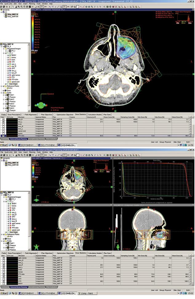 Методика визначення макроскопічного об'єму пухлини приплануванні модульованої заінтенсивністю радіотерапії пухлин голови та шиї