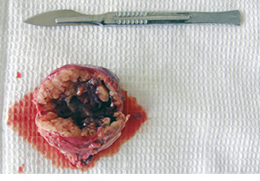 Шваннома забрюшинного пространства— диагностическая загадка для хирурга