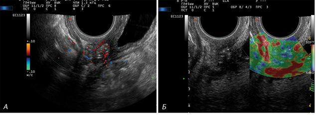 Комплексне ультразвукове дослідження із застосуванням еластографії для виявлення рецидиву ухворих на рак шийки матки