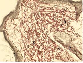 Морфологічне обґрунтування вибору аналгезії зметою профілактики гіпералгезії впісляопераційний період удітей, прооперованих зприводу пухлин черевної порожнини