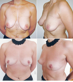 Онкопластична та реконструктивна хірургія раку грудної залози. Досвід впровадження