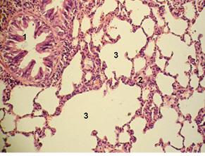 Патоморфологічні зміни внутрішніх органів при гострому поширеному перитоніті на тлі раку товстої кишки в експерименті