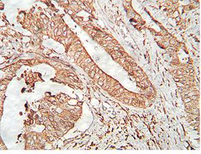 Молекулярно генетические особенности рака желудка: взгляд клинического онколога